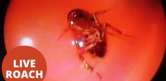 Βίντεο: Βρέθηκε ζωντανή κατσαρίδα μέσα στο κρανίο 42χρονης