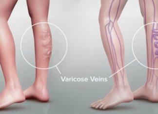 Φλεβίτιδα: Απαλλαχτείτε από τους κιρσούς με φυσικό τρόπο
