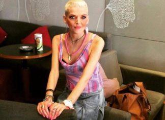 Νανά Καραγιάννη: Η νευρική ανορεξία νίκησε τη δημοσιογράφο